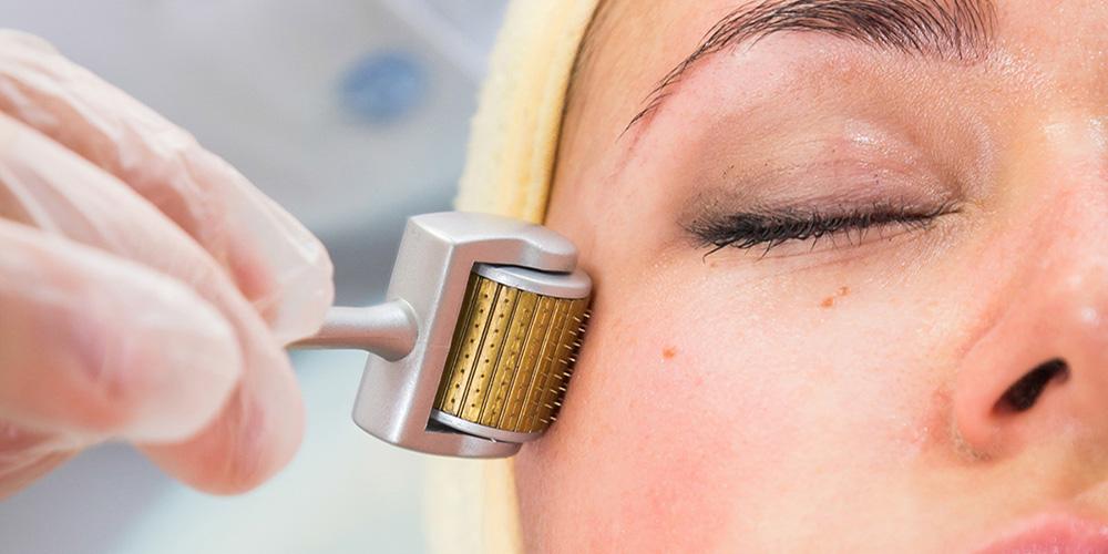Needling per ringiovanire la pelle del viso